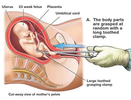 abort