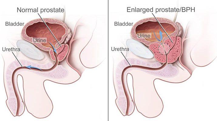 Prostat vezi